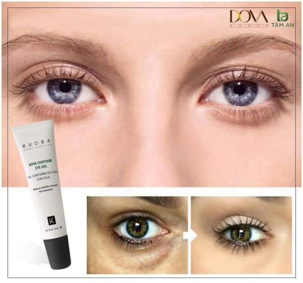 Kem trị thâm mắt Kuora Soya Contour Eye Gel